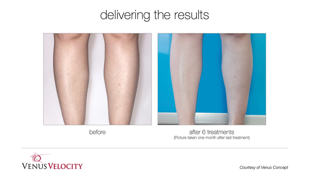 Laser Hair Removal Ottawa Spa Olivia Laser Hair Removal